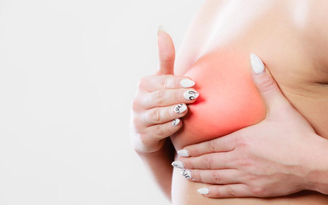 El fármaco sacado de la basura que alarga la vida de las enfermas de cáncer de mama